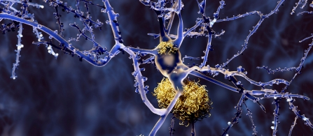 New understanding of how Alzheimer's develops