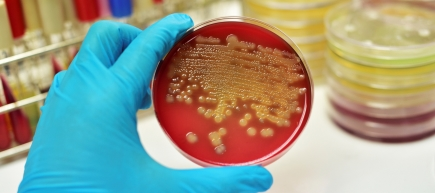 New weapons in the fight against antibiotic resistance
